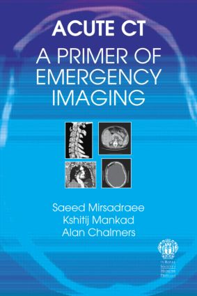 Acute CT: A Primer of Emergency Imaging: 1st Edition (Paperback) book cover