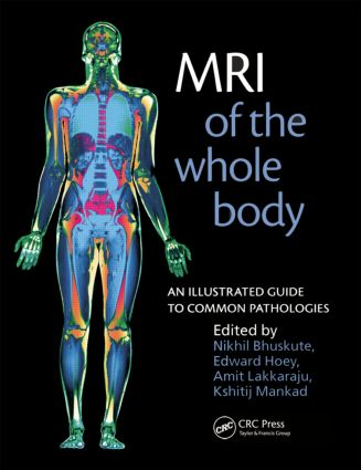 MRI of the Whole Body: An Illustrated Guide for Common Pathologies, 1st Edition (Paperback) book cover