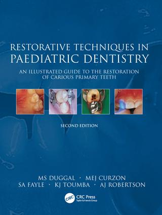Restorative Techniques in Paediatric Dentistry: An Illustrated Guide to the Restoration of Extensive Carious Primary Teeth book cover