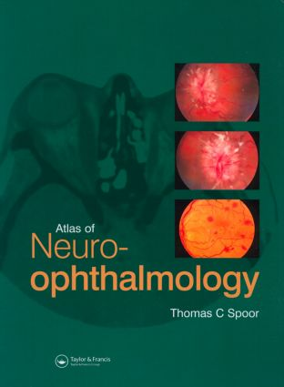 Atlas of Neuro-ophthalmology: 1st Edition (Hardback) book cover