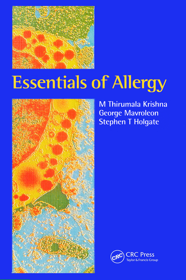 Essentials of Allergy: 1st Edition (Paperback) book cover