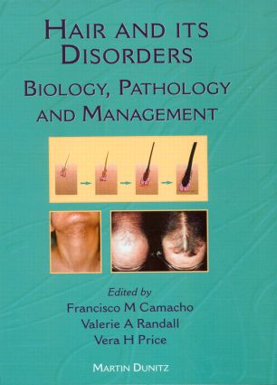 Hair and Its Disorders: Biology, Pathology and Management, 1st Edition (Hardback) book cover