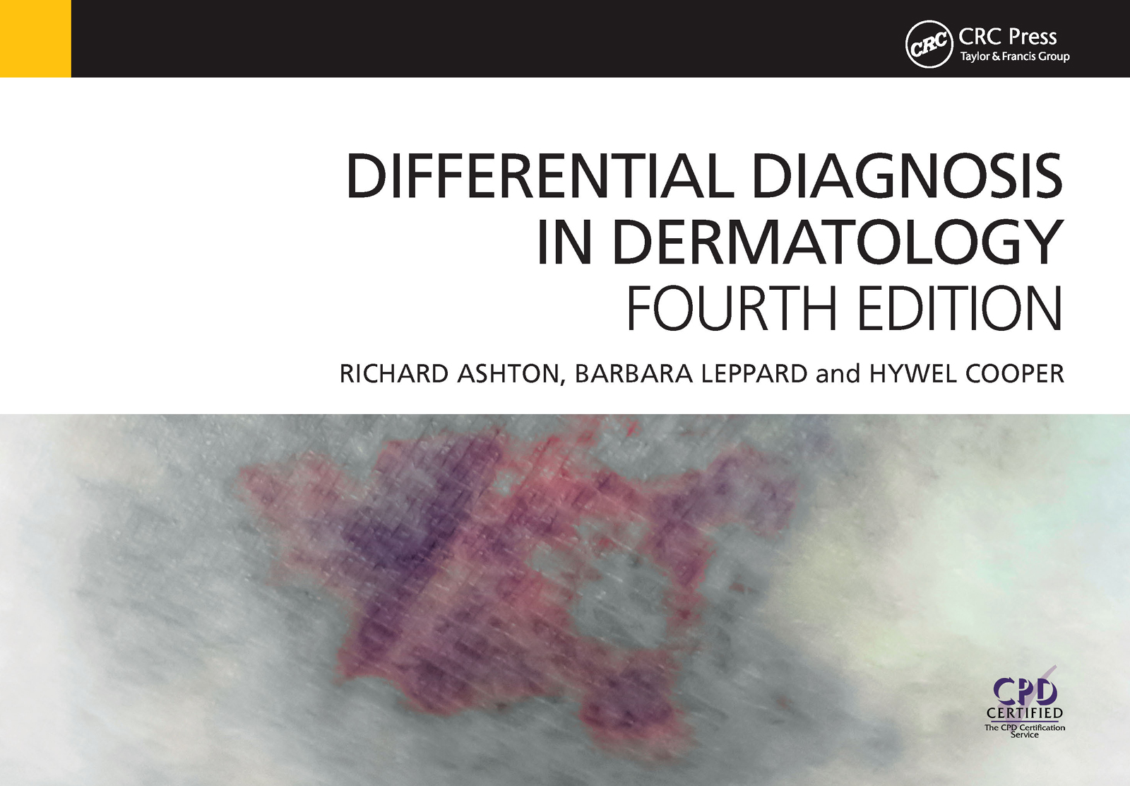 Differential Diagnosis in Dermatology: 4th Edition (Paperback) book cover