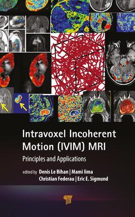 IVIM MRI and Bone Marrow