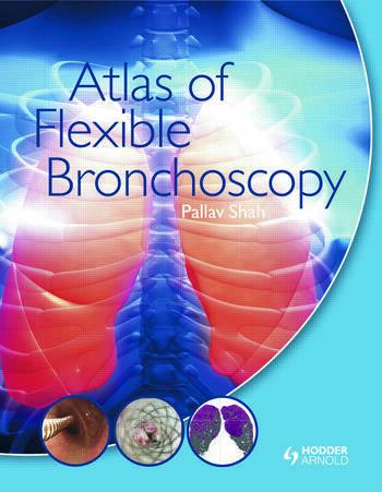 Atlas of Flexible Bronchoscopy book cover