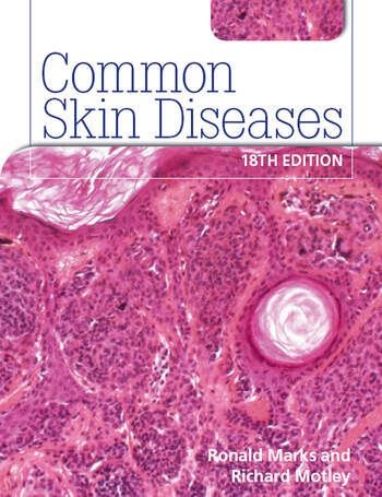 Common Skin Diseases 18th edition ISE Version book cover