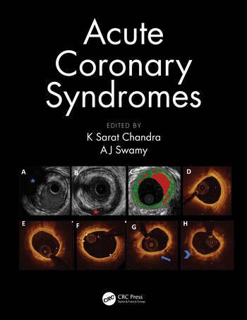 Acute Coronary Syndromes book cover