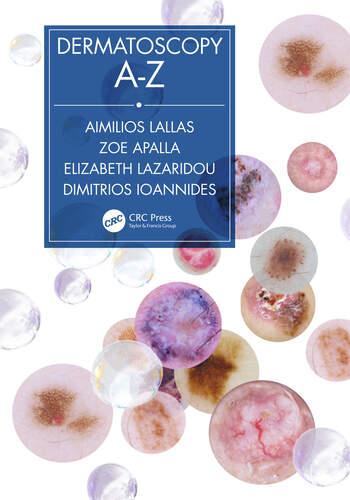 Dermatoscopy A-Z book cover