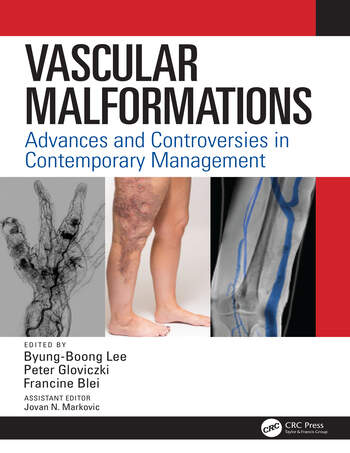 Vascular Malformations Advances and Controversies in Contemporary Management book cover
