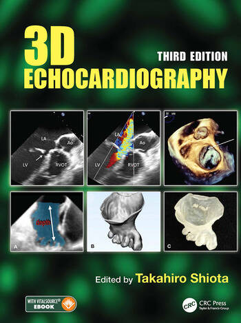 3D Echocardiography book cover
