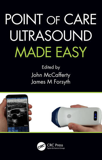 Point of Care Ultrasound Made Easy book cover
