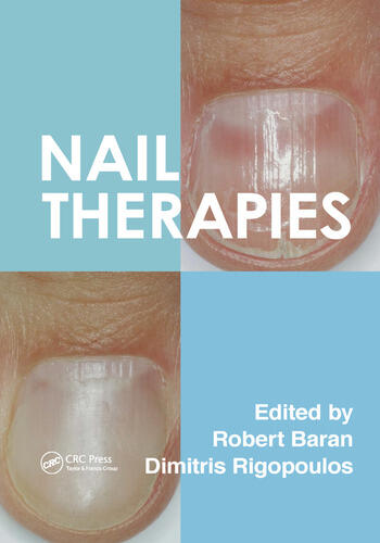 Nail Therapies book cover