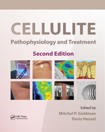 Cellulite Pathophysiology and Treatment book cover