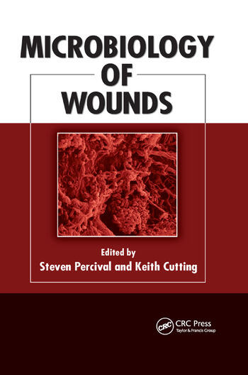 Microbiology of Wounds book cover
