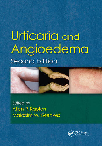Urticaria and Angioedema book cover