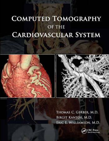 Computed Tomography of the Cardiovascular System book cover
