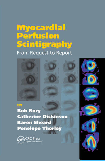 Myocardial Perfusion Scintigraphy From Request to Report book cover