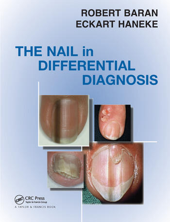 Nail in Differential Diagnosis book cover