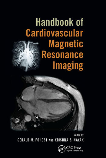 Handbook of Cardiovascular Magnetic Resonance Imaging book cover