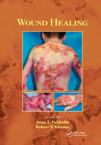Wound Healing book cover