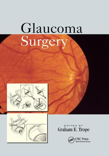 Glaucoma Surgery book cover