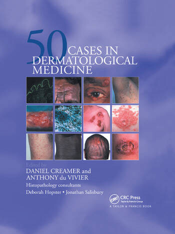 Fifty Dermatological Cases book cover