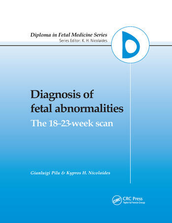 Diagnosis of Fetal Abnormalities The 18-23-Week Scan book cover