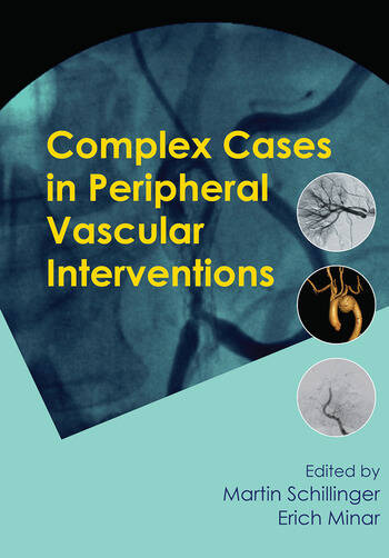 Complex Cases in Peripheral Vascular Interventions book cover