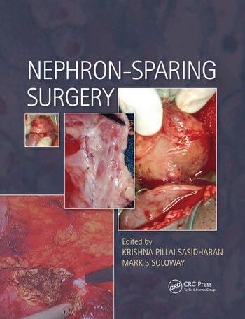 Nephron-Sparing Surgery book cover