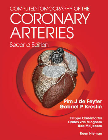 Computed Tomography of the Coronary Arteries book cover