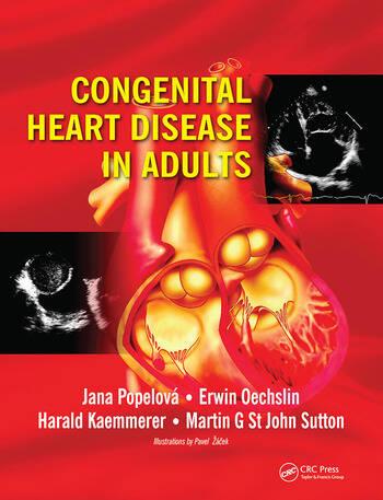 Congenital Heart Disease in Adults book cover