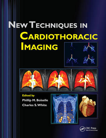 New Techniques in Cardiothoracic Imaging book cover