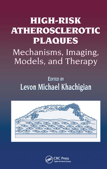 High-Risk Atherosclerotic Plaques Mechanisms, Imaging, Models, and Therapy book cover