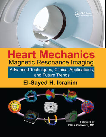Heart Mechanics Magnetic Resonance Imaging�Advanced Techniques, Clinical Applications, and Future Trends book cover