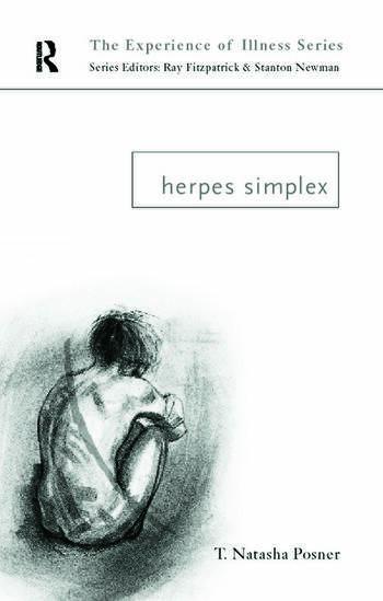 Herpes Simplex book cover