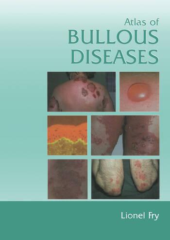 Atlas of Bullous Diseases book cover