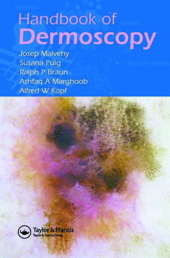 Handbook of Dermoscopy book cover