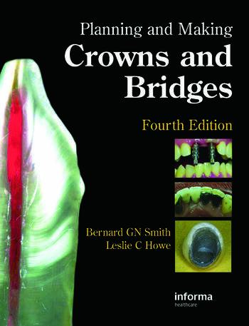 Planning and Making Crowns and Bridges book cover