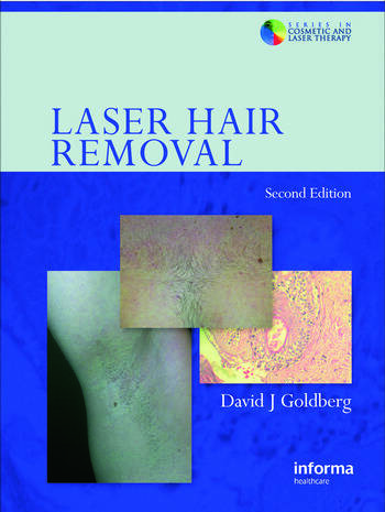 Laser Hair Removal book cover