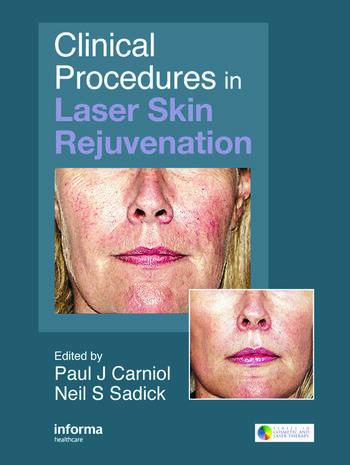 Clinical Procedures in Laser Skin Rejuvenation book cover