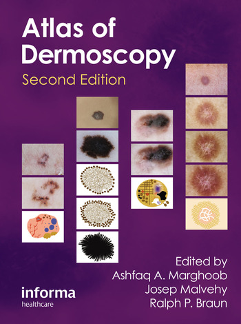 An Atlas of Dermoscopy book cover