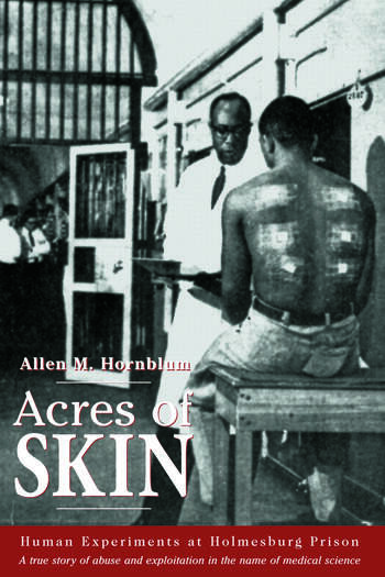 Acres of Skin Human Experiments at Holmesburg Prison book cover