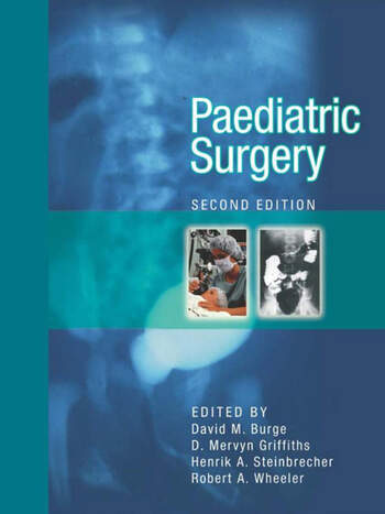 Paediatric Surgery, Second edition book cover