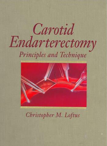 Carotid Endarterectomy Principles and Technique book cover