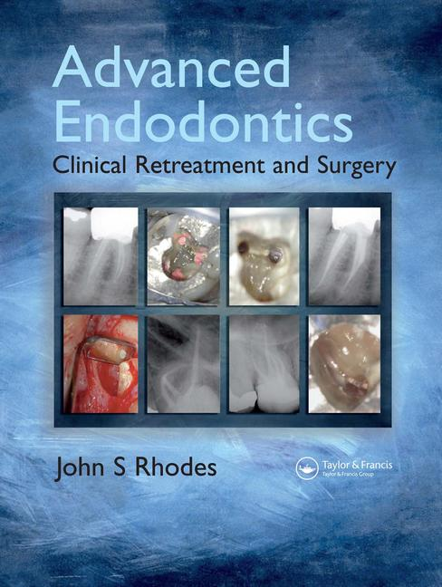 Advanced Endodontics Clinical Retreatment and Surgery book cover