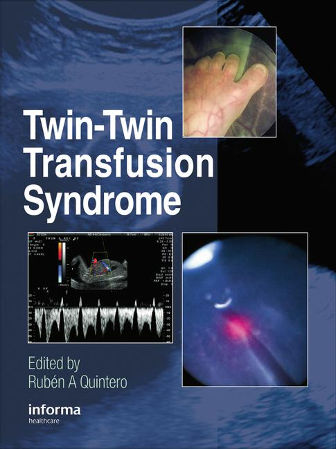 Twin-Twin Transfusion Syndrome book cover