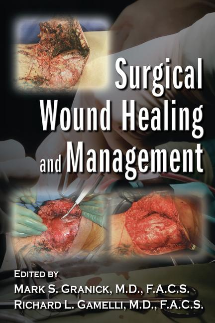 Surgical Wound Healing and Management book cover