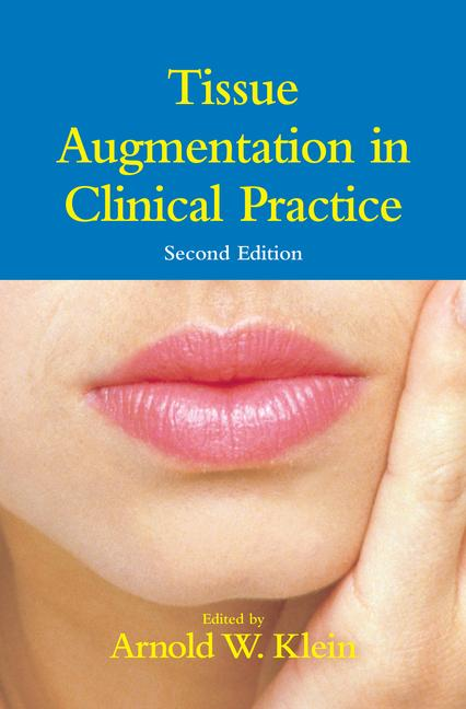 Tissue Augmentation in Clinical Practice book cover