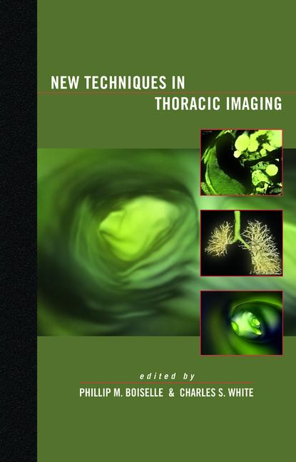 New Techniques in Thoracic Imaging book cover