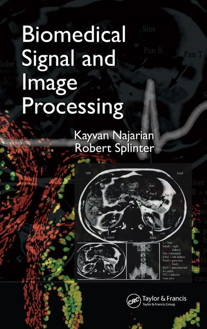 Biomedical Signal and Image Processing book cover